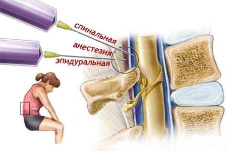 Медикаментозне знеболення, епідуральна анестезія, спинна анестезія